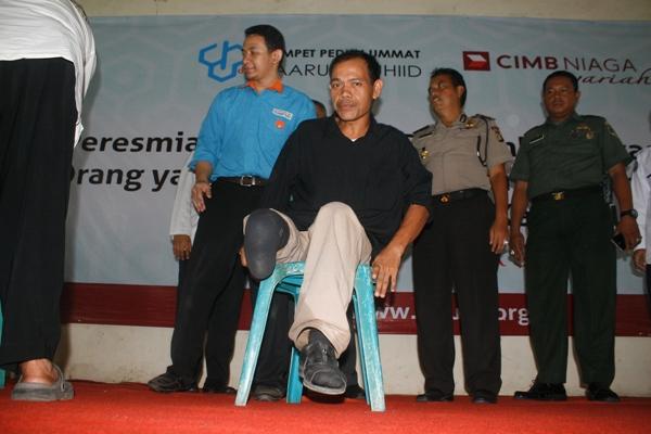 Mantan pasien kusta saat mendapat bantuan kaki palsu di RS Sitanala. (eni)