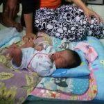 Unik, Bayi di Tangerang Miliki 25 Jari